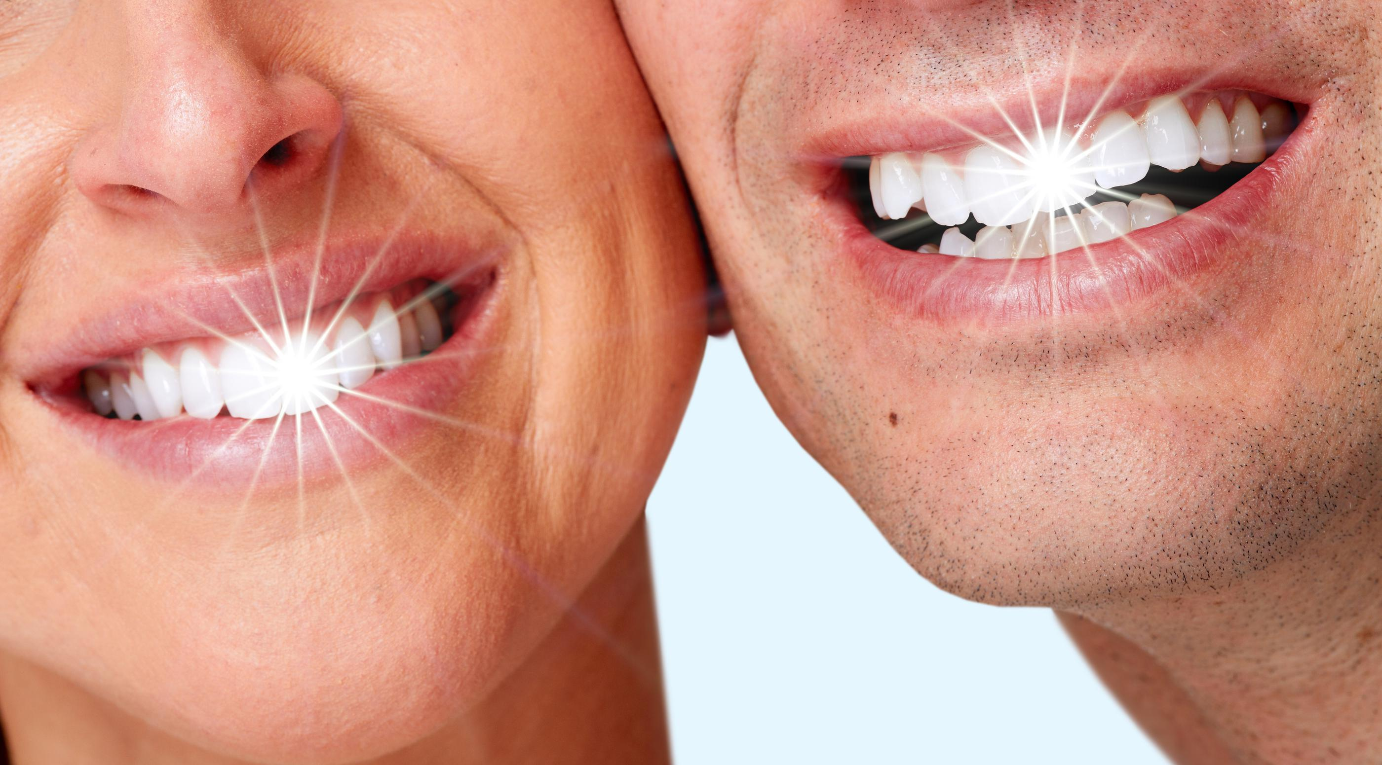 Teeth Whitening Falls Church VA